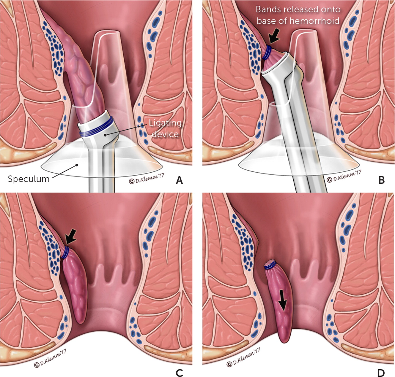 Dr. Osvaldo Iracheta - Banding hemorroidal en Monterrey
